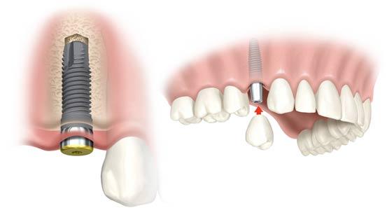 Inplantate