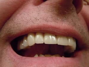 Vier tipes tande